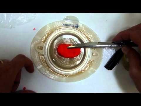 Como colocar bolsa para Colostomia