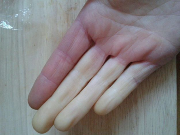 What looks like scary zombie flesh to everyone else is just a normal thing for you. | 16 Things Only People With Raynaud's Will Understand