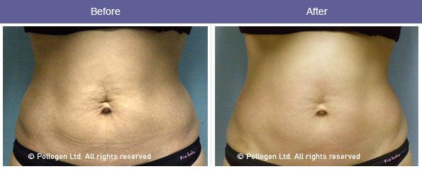 Courtesy Of Dr Alex Levenberg Tel Aviv Israel Body Skin Tightening Skin Tightening Treatments Skin Tightening