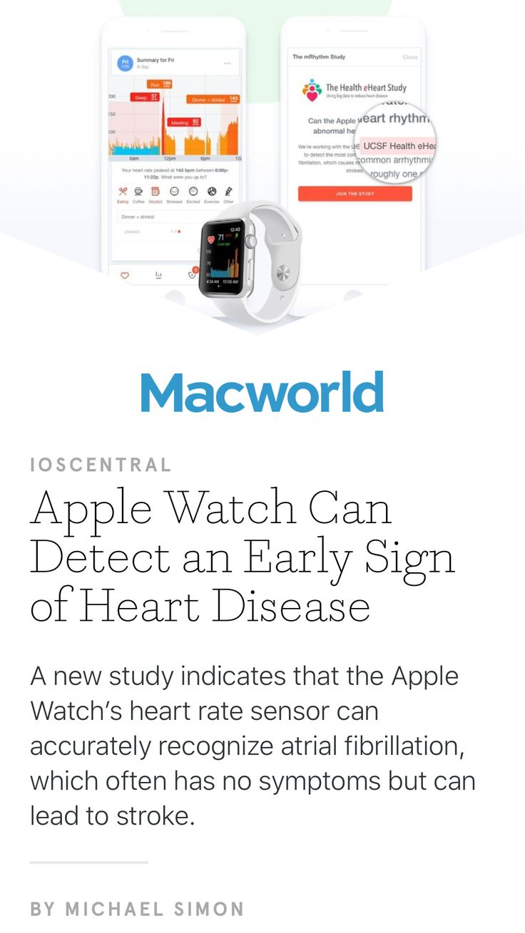 """Apple Watch Can Detect an Early Sign of Heart Disease"" from Macworld, July 2017. Read it on the Texture app-unlimited access to 200+ top magazines."