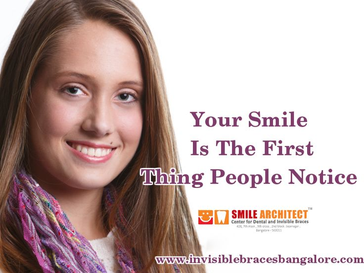 Dental Braces give you a new smile Visit Our Site : http://goo.gl/AR8HLo