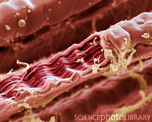 Muscle fibres, SEM Now I wonder what my torn shoulder looks like under a microscope. Perhaps ignorance is bliss.