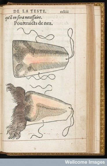 L0041126 Hand coloured illustration of a prosthetic nose. © Wellcome Library, London.