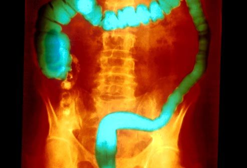 This large intestine, highlighted in green, has ulcerative colitis, a condition with early warning signs such as abdominal pain & bloody diarrhea. People who live in urban areas tend to get it more. Learn about symptoms, treatments, and next steps.