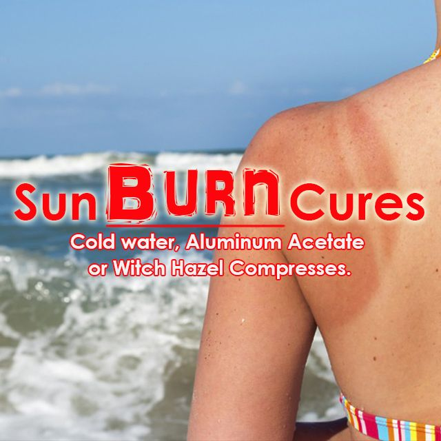 #Summer is prime #sunburn casualty #season, here are #natural sunburn #remedies to help ease the sting!