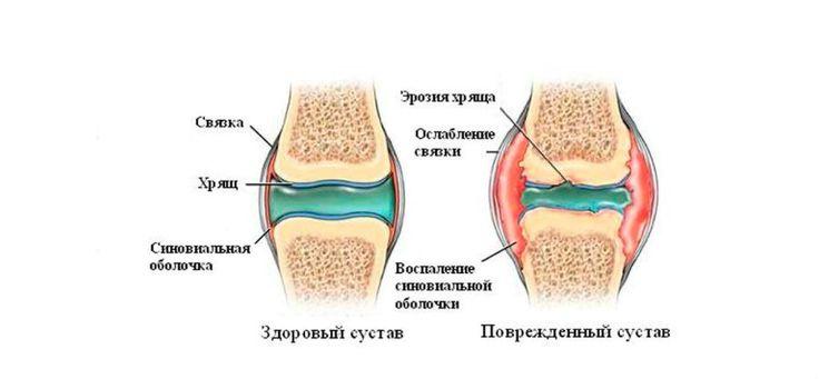 ЛЕКАРСТВО ДЛЯ СУСТАВОВ http://pyhtaru.blogspot.com/2017/08/blog-post_79.html  Лекарство для суставов!  К сожалению, каждого из нас со временем настигает проблема боли в суставах. Одни сталкиваются с ней лишь в глубокой старости, а другие начинают страдать гораздо раньше.  Читайте еще: =========================== МЫЛО ДЛЯ СТЕКЛА http://pyhtaru.blogspot.ru/2017/08/blog-post_38.html ===========================  Это может произойти по разным причинам: из-за тяжелого физического труда, нарушения…