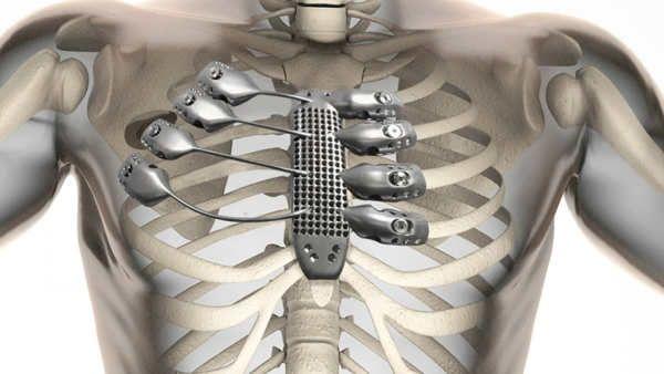 Las impresoras 3D han vuelto a darnos una muestra de que las posibilidades que ofrecen son casi infinitas, especialmente en el sector médico, donde han permitido crear una sección de la caja torácica en titanio que como vemos incluye el esternón y varias costillas.