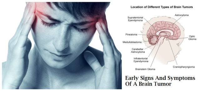 Brain Tumor Surgery in India : Complete Guide