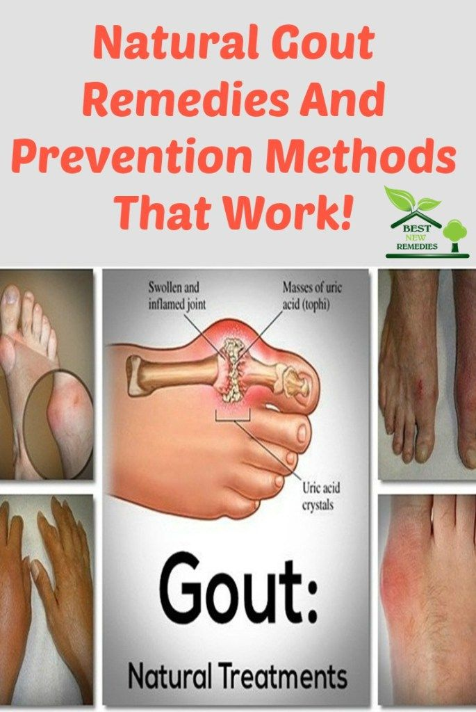 high uric acid heart disease what to eat to prevent gout flare ups how do i get rid of gout in my ankle