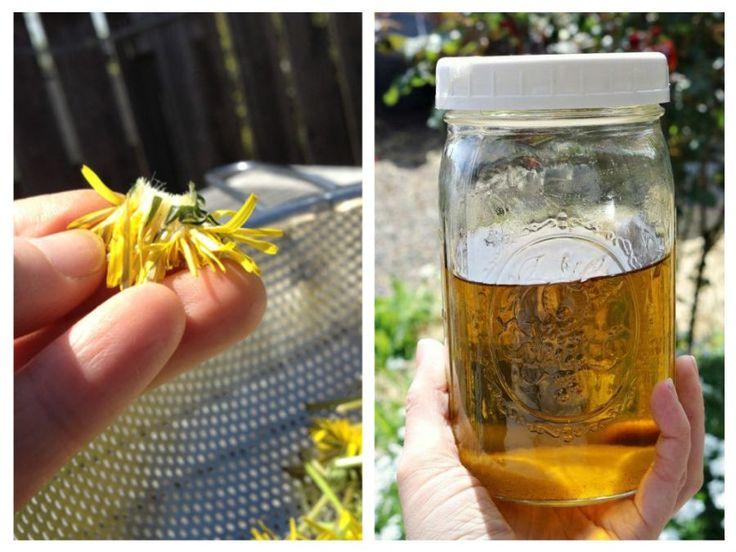 Uleiul din flori de păpădie preparat în casă este un remediu eficient împotriva pistruilor în special, şi petelor de bătrâneţe.