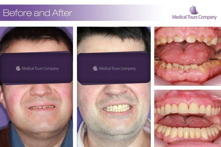 Cazuri before & after #coroane dentare #restaurari protetice