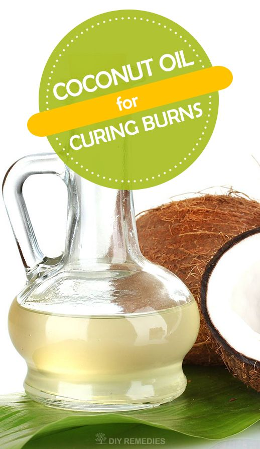 Is Coconut Oil good for Burns?  Yes, of course it works well for treating burns and it is mostly commonly used as a topical treatment for burns in most of the coconut cultivated countries.