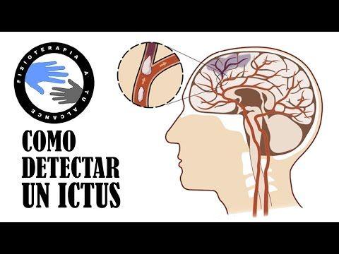 Como detectar un ictus o accidente cerebro vascular (ACV) en menos de un minuto - YouTube