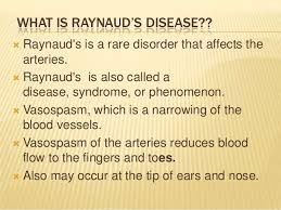 Image result for raynaud's phenomenon in toes