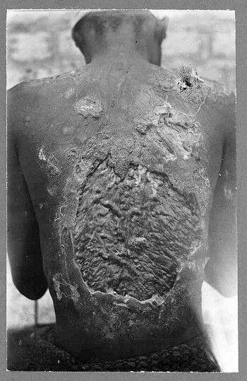 Results of torture from American slavery