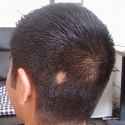 Six Excellent Herbal Remedies For Alopecia (To make your hair grow!)