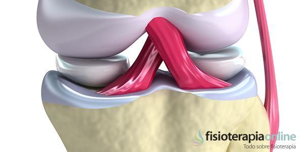 M ¿Qué es una lesión del Ligamento Cruzado Anterior?   Fisioterapia Online