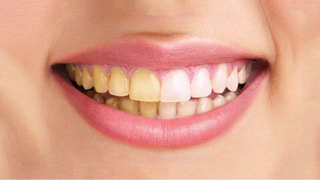 11 Easy Ways How to Whiten Yellow Teeth Without a Dentist  - Do you have yellow teeth? although only a color, but the teeth look yellow ...