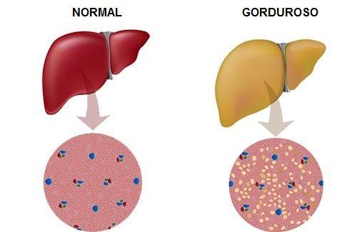 A esteatose hepática, também conhecida como fígado gorduroso, é um problema de saúde bastante sério. Saiba mais sobre a doença e como controlá-la com chás naturais.