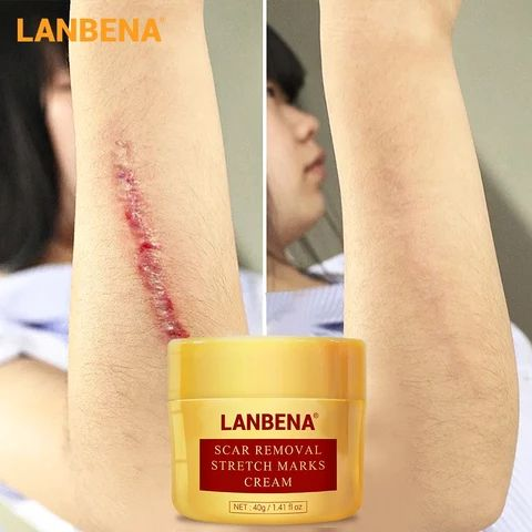 LANBENA Scar Removal Cream Acne Treatment Repairin…