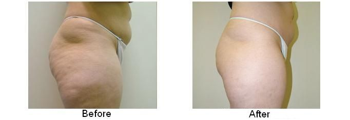 #Body contouring Cellulite Removal Procedure