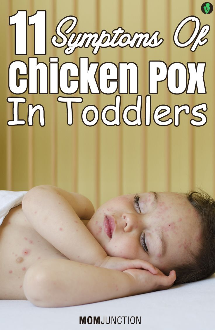 11 Serious Symptoms Of Chicken Pox In Toddlers You Should Be Aware Of