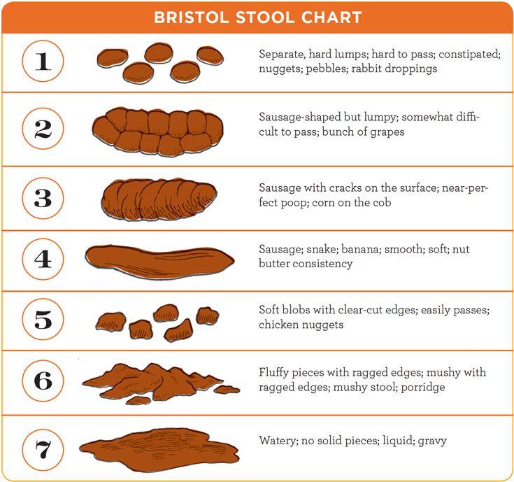 Más de 25 ideas increíbles sobre Stool chart en Pinterest Poo - stool color chart