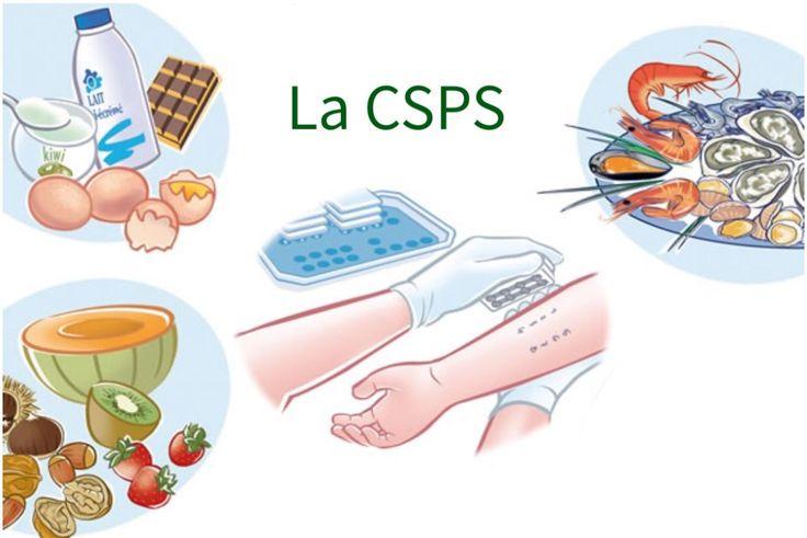 Allergies alimentaires et tests cutanés -Ce que vous devez savoir