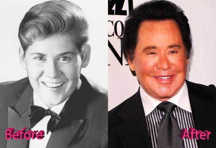 wayne-newton-before-and-after-facelift