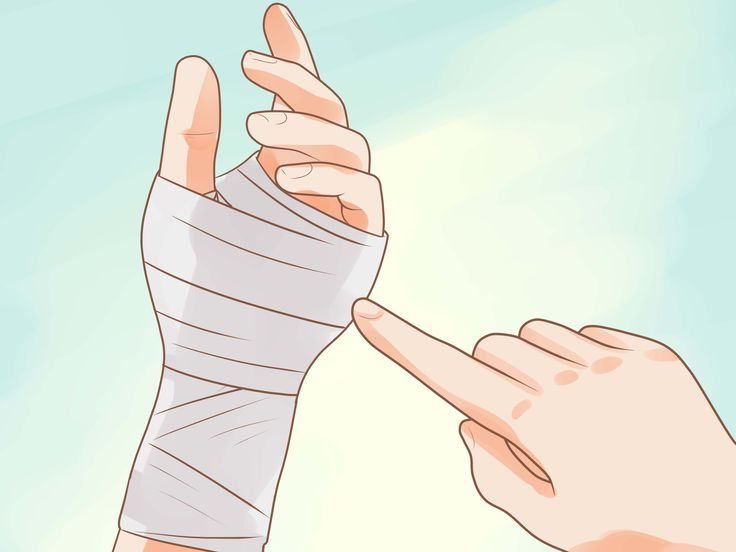 How to Wrap a Sprained Wrist
