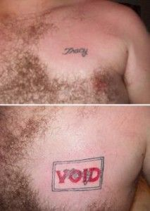 Is Laser Tattoo Removal Really Safe?
