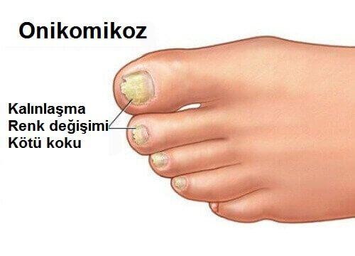Bilimsel adı onikomikoz olan tırnak mantarı tırnağın renk ve kalınlığını değiştirerek görünümünü etkiler.
