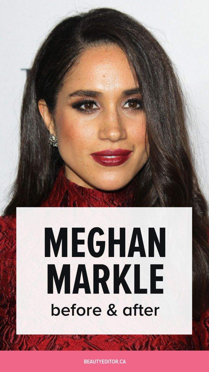 Meghan Markle, Before And After