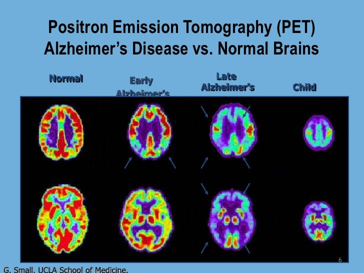 reversing memory deficits inflicted by alzheimers disease Blocking a key enzyme may reverse memory loss  such as posttraumatic stress disorder  epigenomics of alzheimer's disease progression reversing alzheimer's.