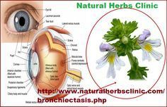 Bronchiectasis Natural Treatment has also been discovered for curing respiratory tract illnesses. Echinacea, licorice root and garlic are used to wipe out pollution and straightforwardness side effects. Taken each day, these herbs also progress continued with health and wellness.... http://www.naturalherbsclinic.com/blog/bronchiectasis-natural-treatment/