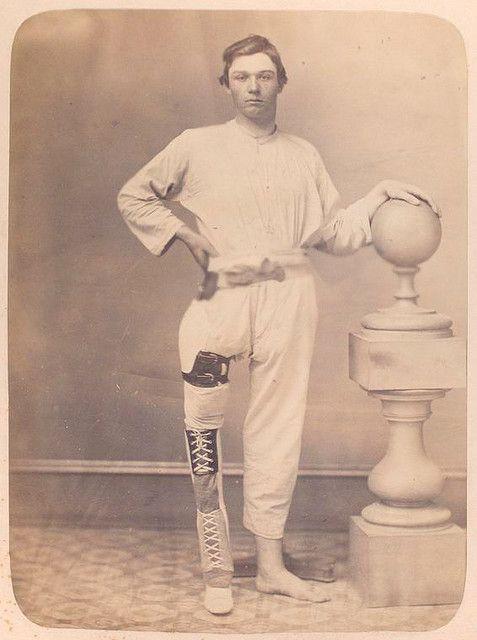NY Public Libraries flickr: Civil War vet with prosthetic leg.