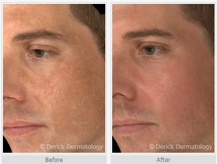 Image result for De-Beautifying Skin Disorder: Melasma the Monster
