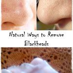 Natural Teeth Whitening Treatments