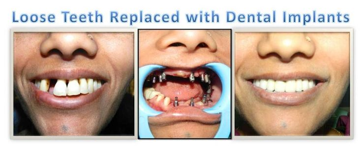 Find the Right Dental Care Center for #Full #Mouth #Implant in Goa and Mumbai