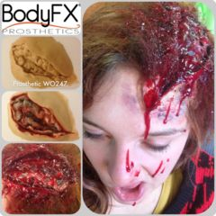 Open head Wound   Wounds