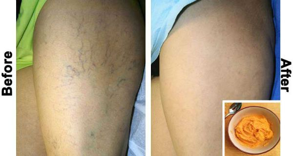 This Is The Most Effective Natural Treatment for Varicose Veins!