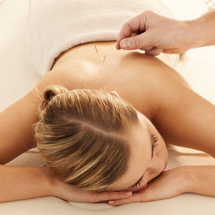 maigrir acupuncture aiguilles dos femme