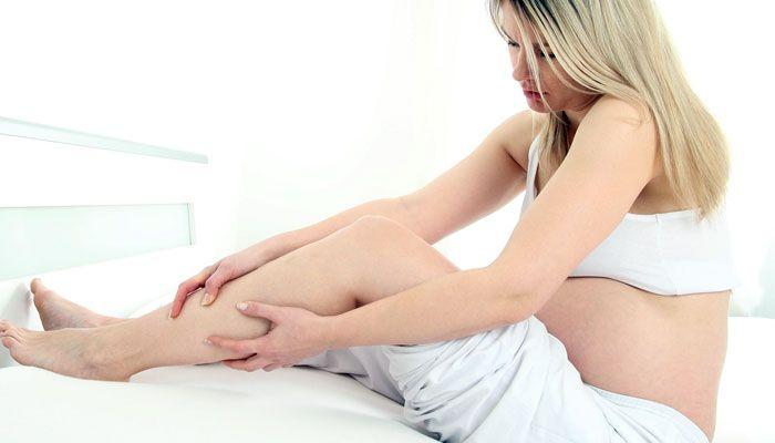 Remedios caseros para prevenir las varices durante el embarazo