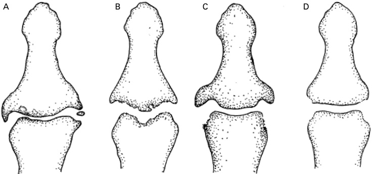 Contrasting radiographic features at interphalangeal joints (IPJs) of (A) osteoarthritis (OA): focal narrowing, marginal osteophyte, sclerosis, osteochondral bodies; (B) erosive OA: subchondral erosion; (C) psoriasis: proliferative marginal erosion, retained or increased bone density; and (D) rheumatoid arthritis: non-proliferative marginal erosion, osteopoenia.