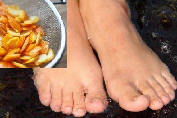 Položila som si kôru z mandarínky medzi prsty u nôh. Potom som zistila, že ide o skvelý trik pre každého | Chillin.sk