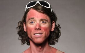 10 Ways to Get Rid Of A Sunburn on Your Face Fast