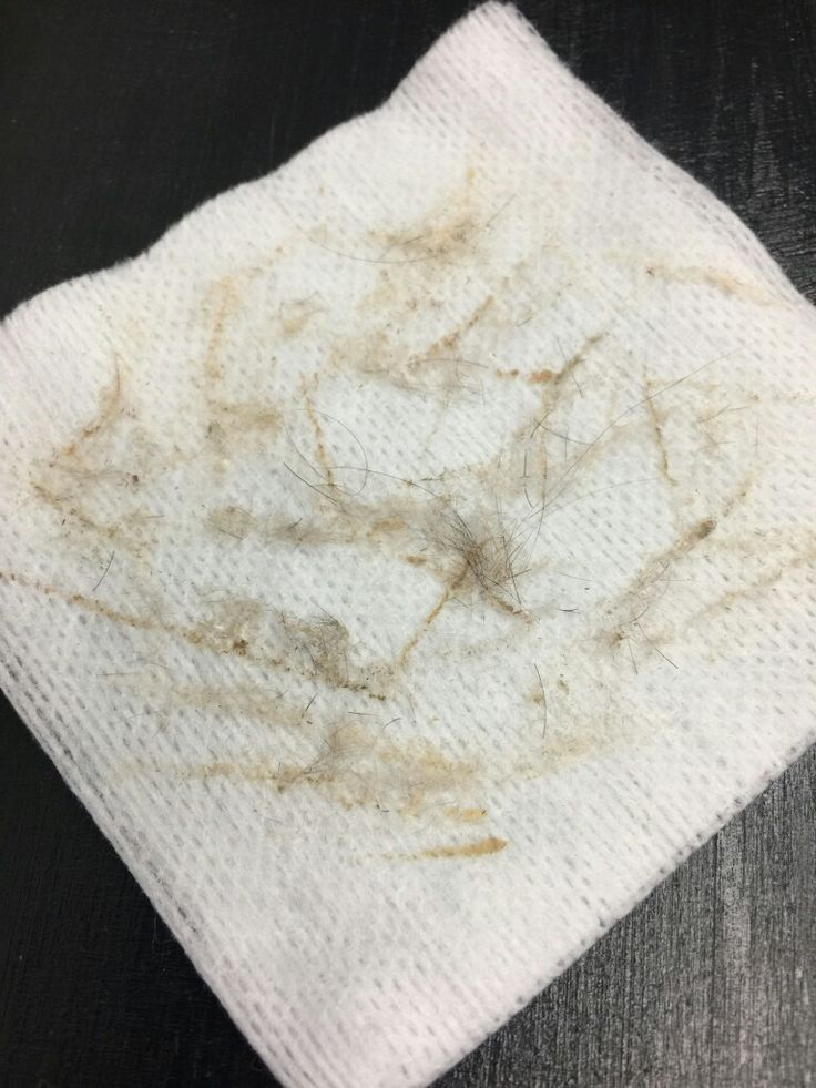Imagine how good her skin feels now that all of the dry, dead skin cells and vellus hair (peach fuzz) are removed! 509-961-6555 www.bareblissyakima.com #dermaplane #barebliss #exfoliate #healthyskin #skinrejuvenation #skincare #exfoliation #manualexfoliation #radiantskin #exfoliateyourskin #skinbrightening #nomorepeachfuzz #vibrantskin #yakima #instantgratification #dermaplaningservice #loveyourskin #unclogyourpores #smoothskin #beautitudebybarebliss #theraderm
