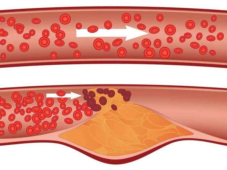 Abbassare il colesterolo con il Forever Aloe Vera Gel