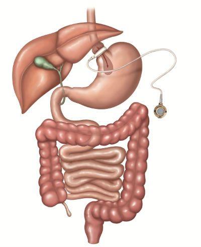 Escolha do tipo de cirurgia bariátrica depende do peso e da saúde do paciente