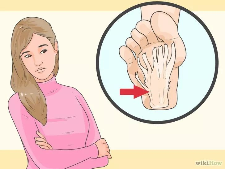 Imagen titulada Avoid Heel Pain and Plantar Fasciitis Step 1